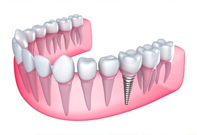 Benefits of Mini Dental Implants - Sacramento Dentist