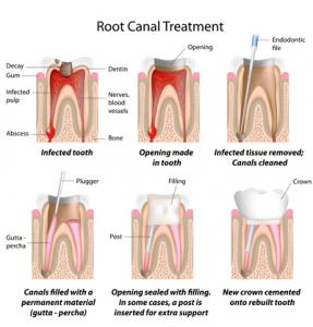 sacramento-root-canal-treatment
