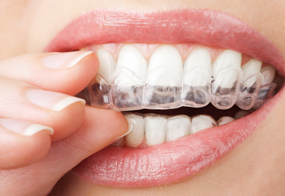 Image result for Best Way to Whitening Your Teeth at Home
